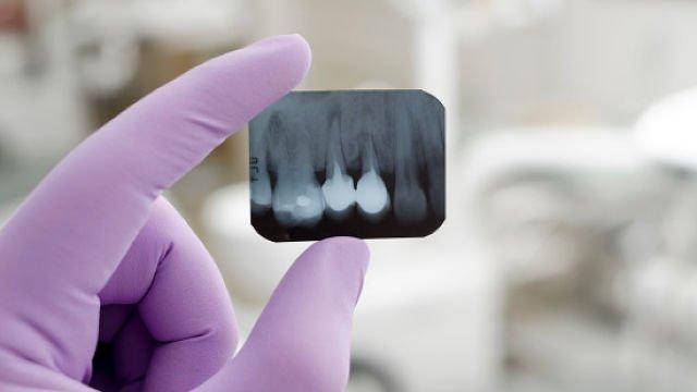 Виден ли пульпит на снимке зуба