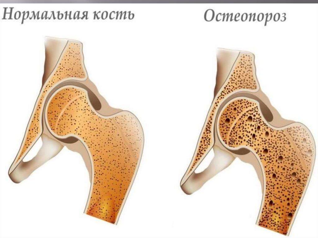 изменением структуры костной ткани
