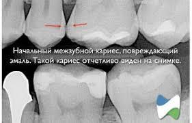 кариес снимок зуба