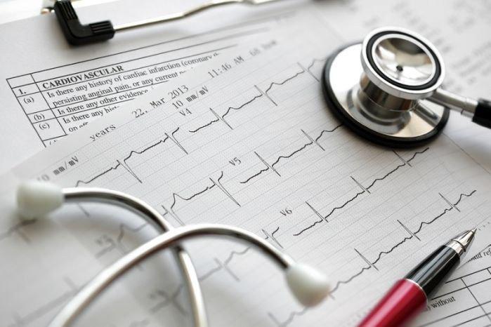 Американские кардиологи призвали учитывать лекарственную терапию при аритмии