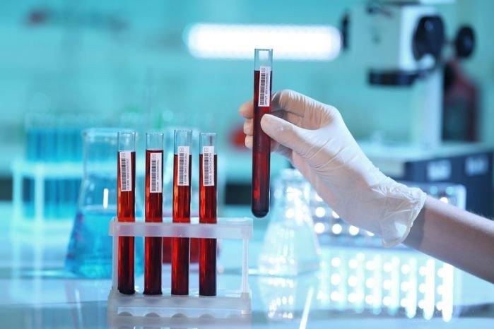 Первый вылечившийся от ВИЧ пациент находится в терминальной стадии лейкоза