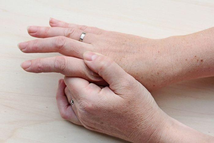 Американские ревматологи рекомендовали агрессивную терапию метотрексатом при ревматоидном артрите